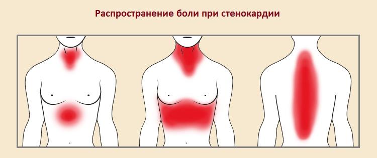 Распространение боли при стенокардии