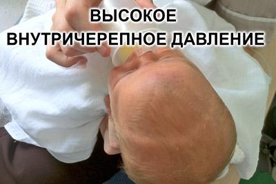 Высокое внутричерепное давление у ребенка