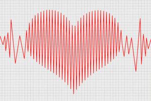 Что покажет кардиограмма сердца