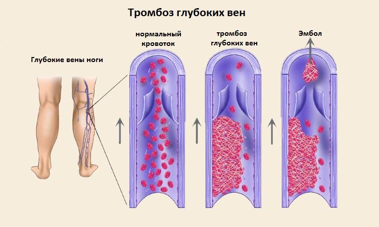 Кардиомиопатия смешанного генеза у взрослых: что это такое ...