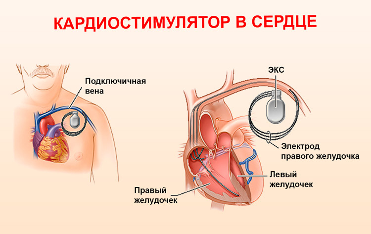 Кардиостимулятор сердца: противопоказания по возрасту, стоимость ...