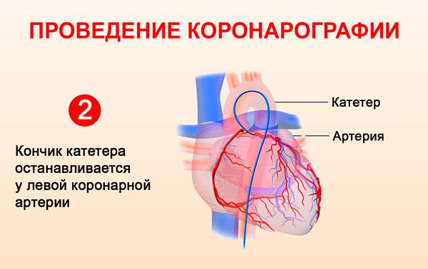 Катетер в левой коронарной артерии
