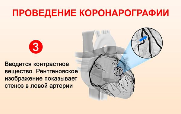 Стеноз левой коронарной артерии
