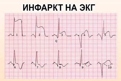 Инфаркт на кардиограмме