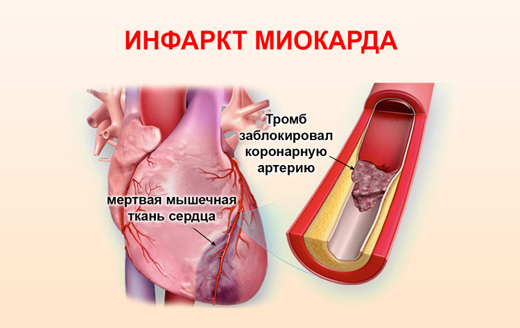 Поражение миокарда