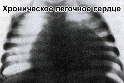 Хроническое легочное сердце на ЭКГ
