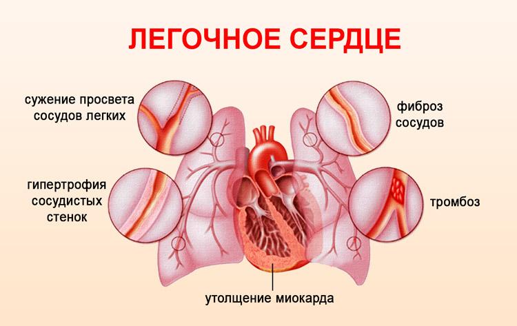 Схема легочного сердца