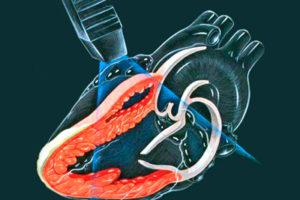 Расчет массы миокарда левого желудочка