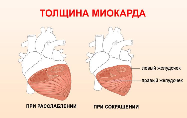 Толщина миокарда желудочков