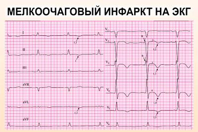 Мелкоочаговый инфаркт на кардиограмме