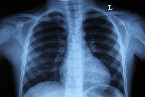 Рентген грудины