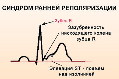 синдром ранней реполяризации миокарда на ЭКГ
