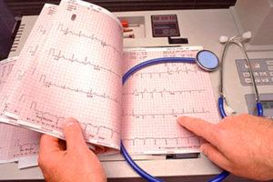 О чем говорит нарушение внутрижелудочковой проводимости сердца