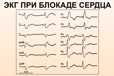 ЭКГ при блокаде сердца