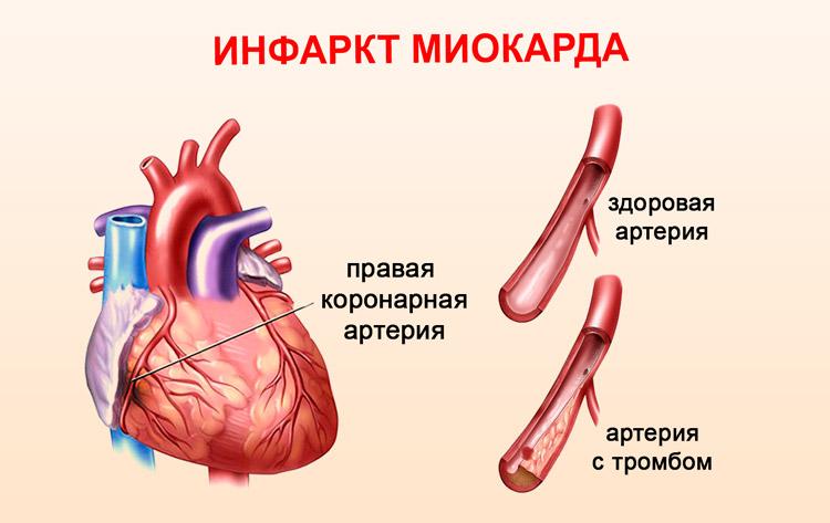 инфаркт левого желудочка симптомы и