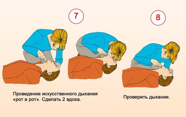Проведение искусственного дыхания