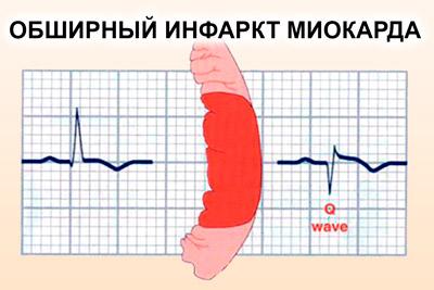 Обширный инфаркт миокарда
