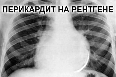 Воспаление перикарда на рентгене