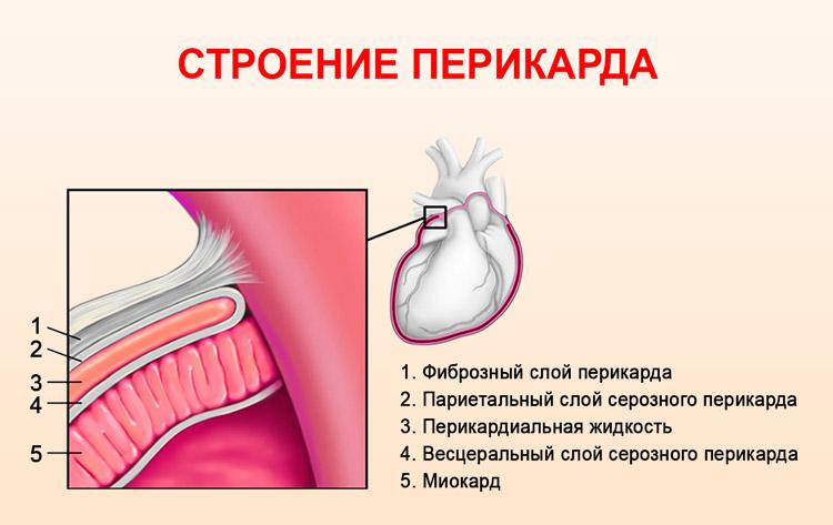 Полость перикарда сердца что это причины и виды перикардитов