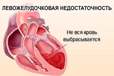 Не выбрасывается вся кровь