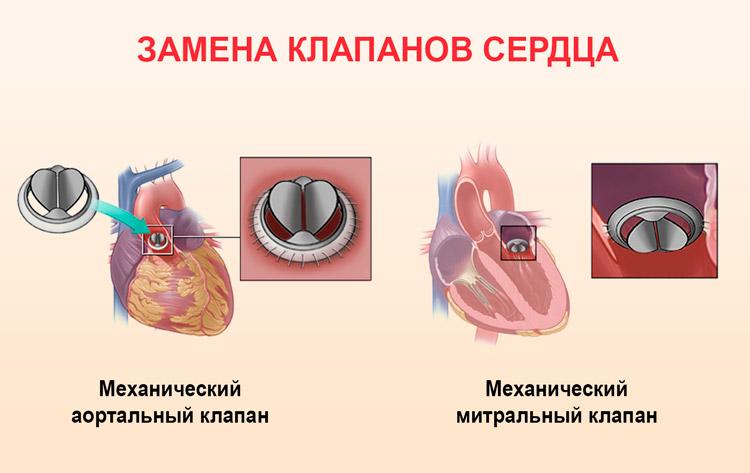 Механические клапаны сердца