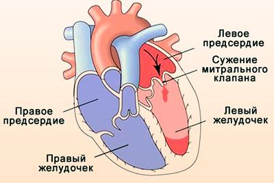Дисфункция митрального клапана