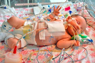 У ребенка заболевание сердца