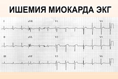 Ишемия миокарда на ЭКГ