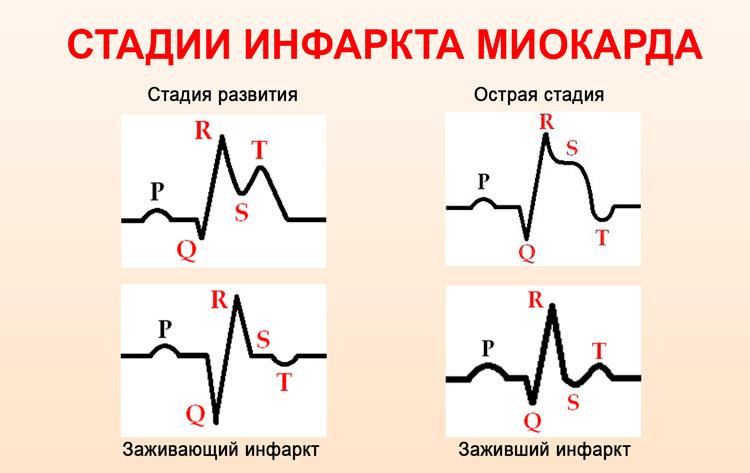 Фазы инфаркта миокарда