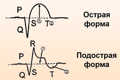 Острая и подострая стадии инфаркта на ЭКГ