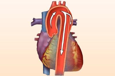 Причины и лечение расслоения аорты
