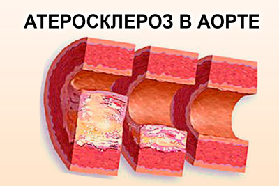 Атеросклеротические бляшки в аорте