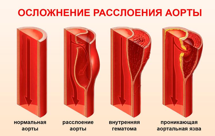 Рассдоившаяся аорта