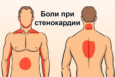 Локализация боли при стенокардии