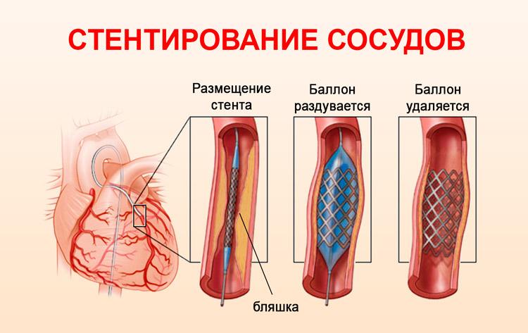 Установка стента