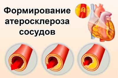 Образование атеросклероза сосудов