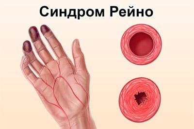Симптомы синдрома Рейно