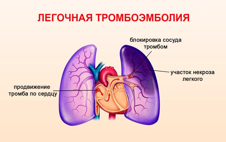 Тромбоэмболия легкого