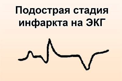 Подострая стадия инфаркта на ЭКГ