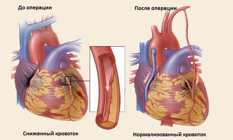 Сердце после операции