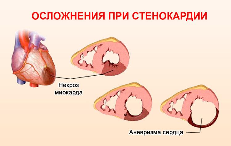 Инфаркта и аневризма миокарда