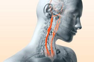 Особенности стеноза сонной артерии