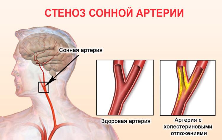 Холестерин в сонной артерии