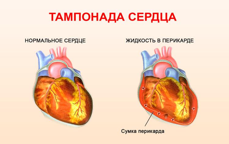 жидкость в сердечной сумке