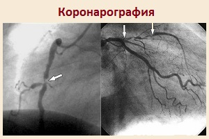 Тромболизис показания и противопоказания при инфаркте