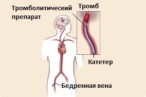 Процедура тромболизиса