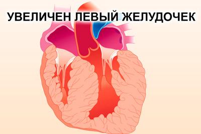 Увеличенный левый желудочек сердца