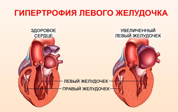 Увеличение левого желудочка сердца: что это такое, причины ...