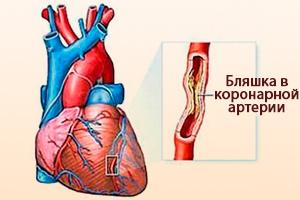 Бляшка в коронарной артерии