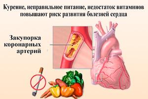 Факторы риска развития болезней сердца